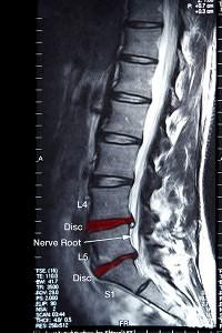 Chiropractic Covington GA Spine X-Ray