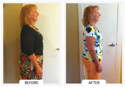 Chiropractic Covington GA Weight Loss Before and After Barb