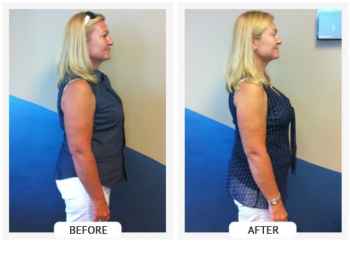 Chiropractic Covington GA Weight Loss Before and After Jeanie