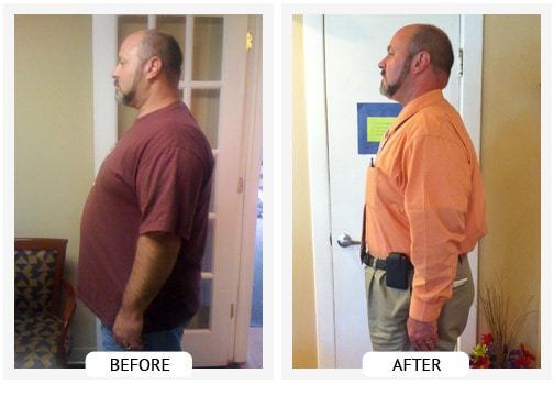 Chiropractic Covington GA Weight Loss Before and After Roland